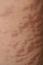 distension-striae-11.jpg