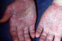 irritant-dermatitis.jpg