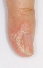 finger wart