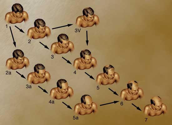 baldness.jpg