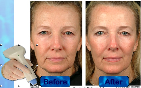 thermage-before-after.jpg